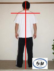 腰痛(格闘技中に起きた)の改善例