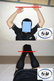 慢性的な腰痛の改善例