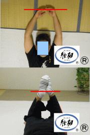 首こり、肩のズレの改善例