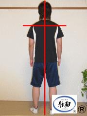 骨盤と仙骨のずれによる腰痛(ケガによるもの)の改善例
