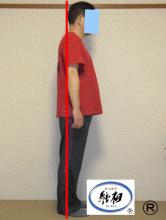 腰痛の改善例