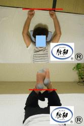 腰痛(ぎっくり腰)のゆがみの改善例