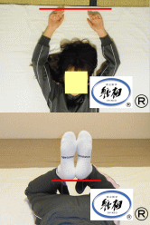 肩こり、身体のゆがみの改善例