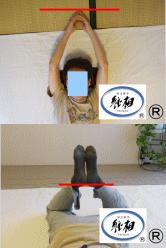 左手のしびれ、身体のゆがみの改善例