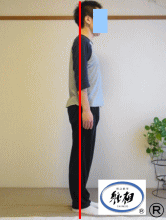 体のゆがみ、肩痛、首痛、頭痛の改善例