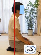 肩の痛みの改善例