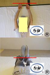 軽いぎっくり腰、身体のゆがみの改善例