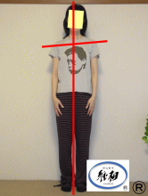 肩こり、腰痛、ゆがみの改善例