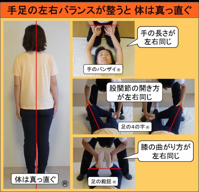 手足の左右バランスが整うと体は真っ直ぐ(しんそう療方)